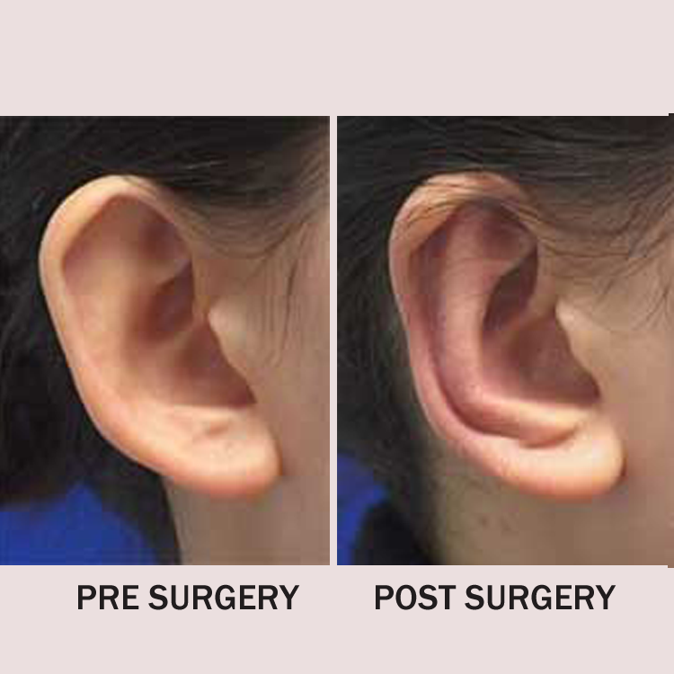 Ear Pinning Surgeon in Manchester